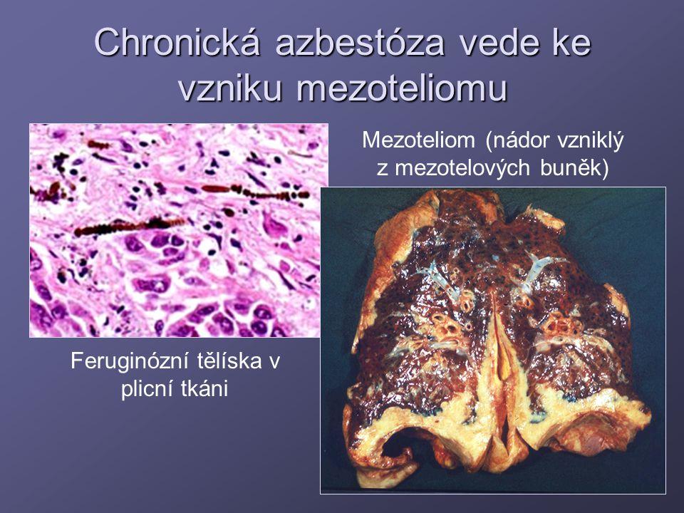 Chronická azbestóza vede ke vzniku mezoteliomu