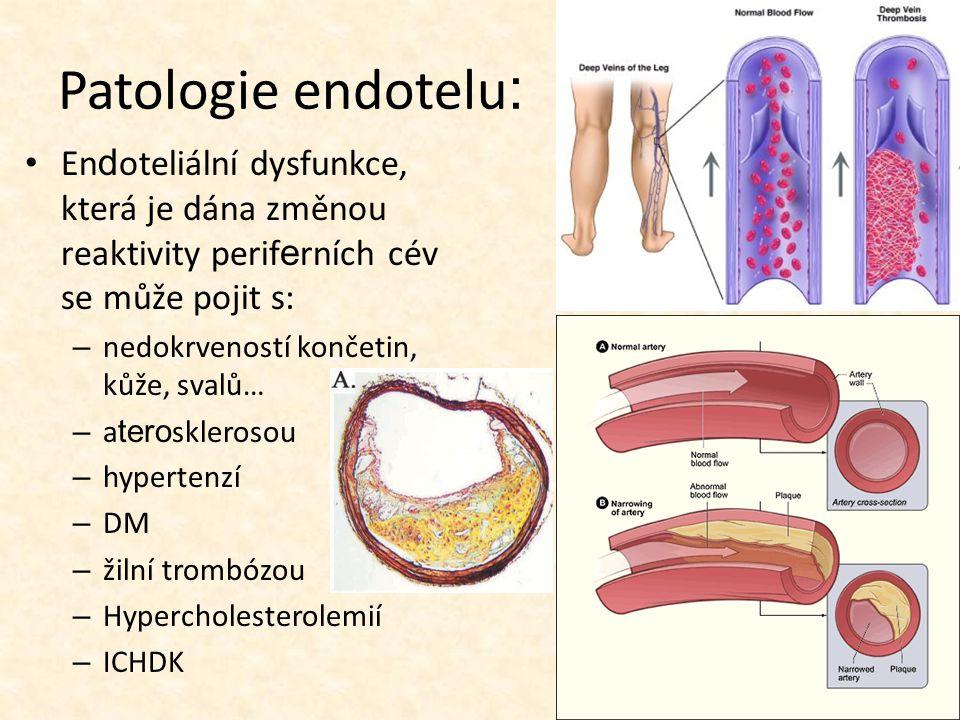 Patologie endotelu: Endoteliální dysfunkce, která je dána změnou reaktivity periferních cév se může pojit s:
