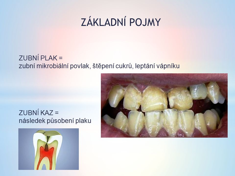 ZÁKLADNÍ POJMY ZUBNÍ PLAK = zubní mikrobiální povlak, štěpení cukrů, leptání vápníku ZUBNÍ KAZ = následek působení plaku.