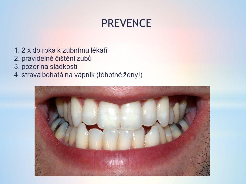 PREVENCE 1. 2 x do roka k zubnímu lékaři 2. pravidelné čištění zubů 3.