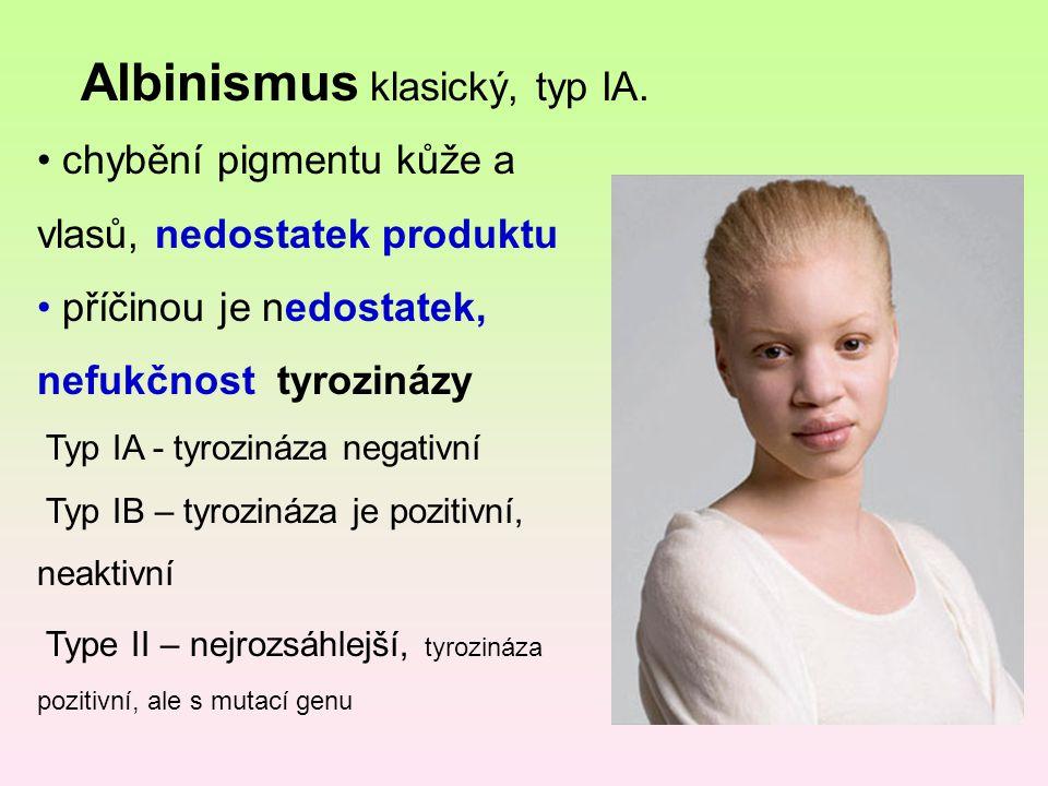 Albinismus klasický, typ IA.