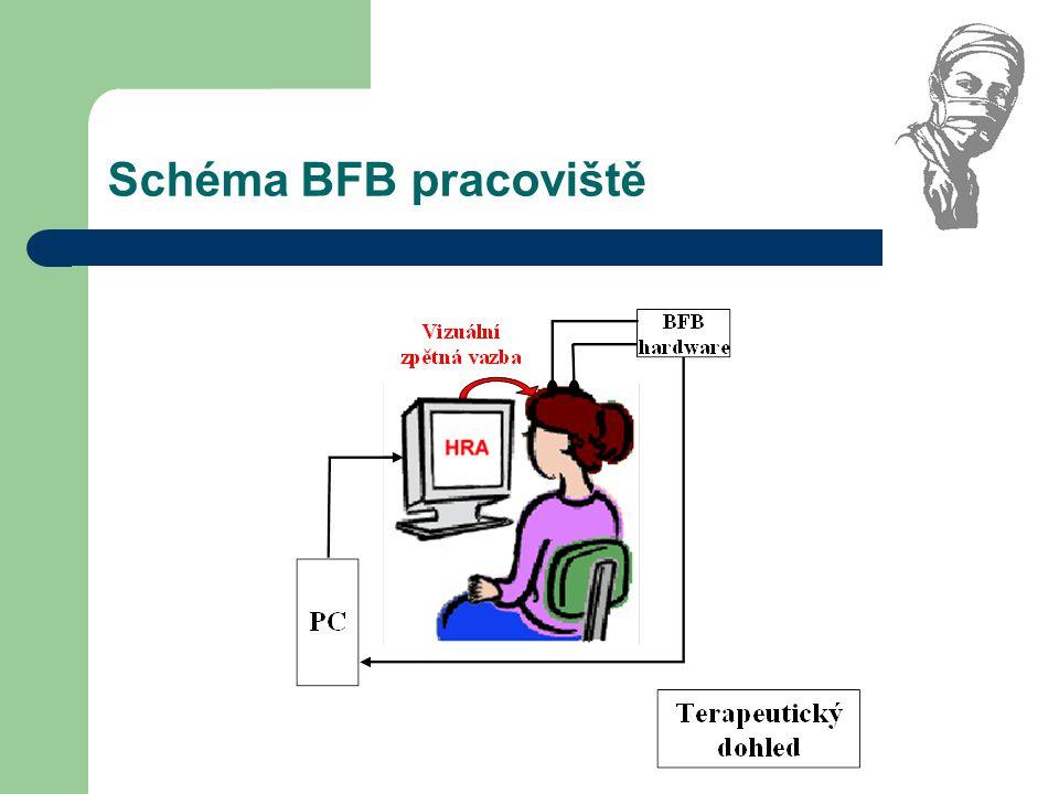 Schéma BFB pracoviště