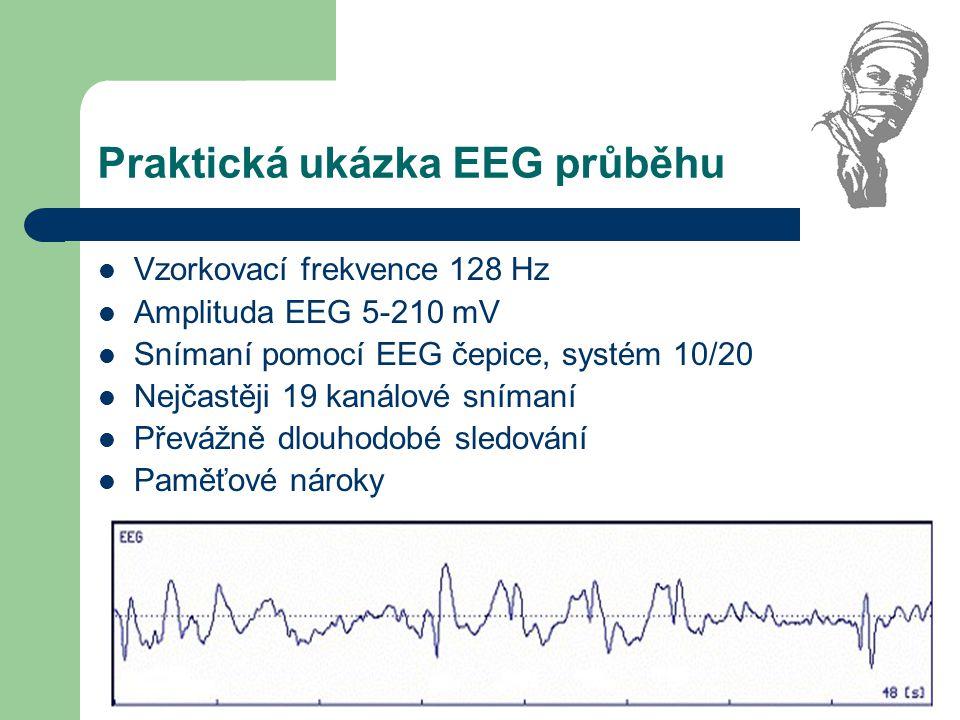 Praktická ukázka EEG průběhu