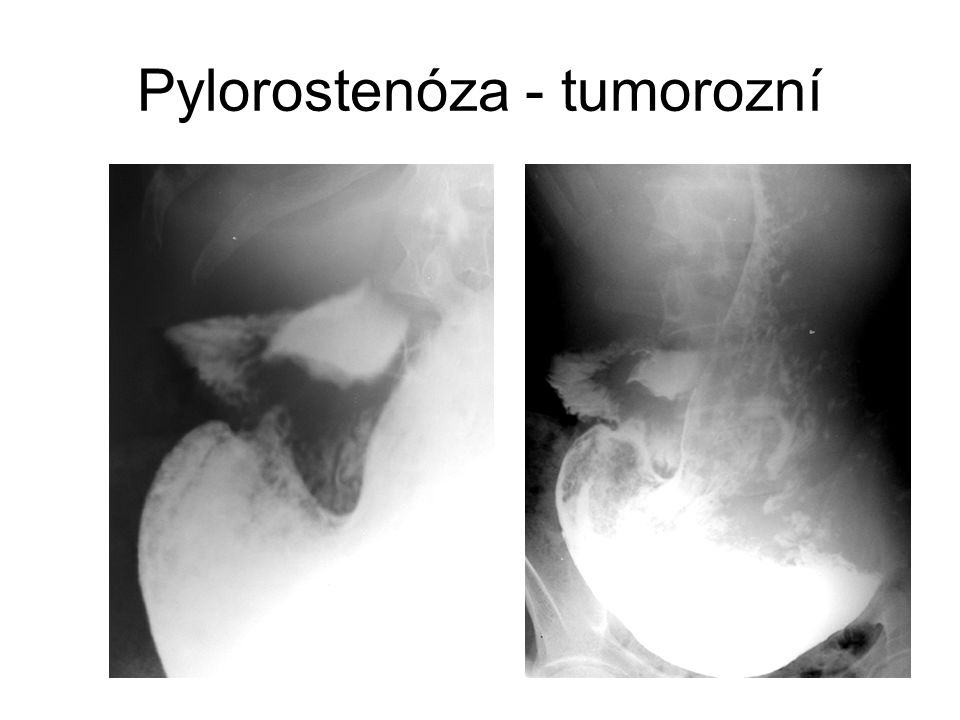 Pylorostenóza - tumorozní