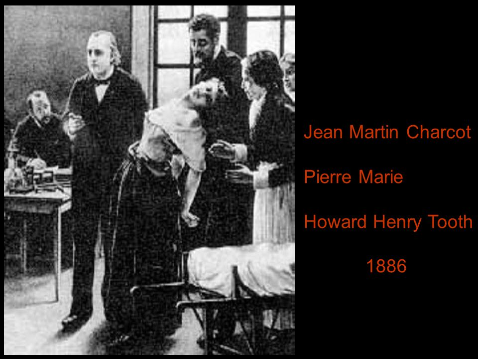 Jean Martin Charcot Pierre Marie Howard Henry Tooth 1886