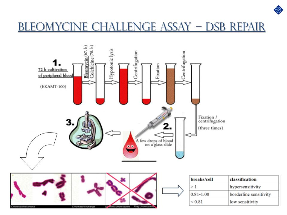 Bleomycine Challenge Assay – DSB Repair