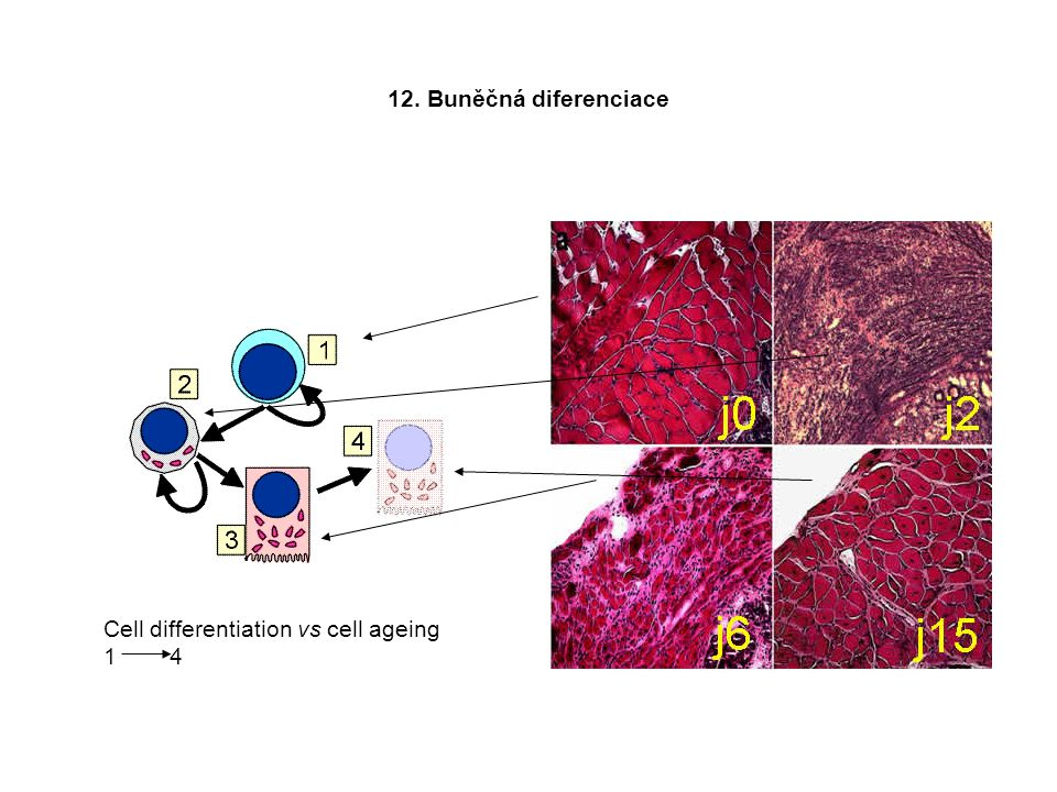 12. Buněčná diferenciace Cell differentiation vs cell ageing 1 4