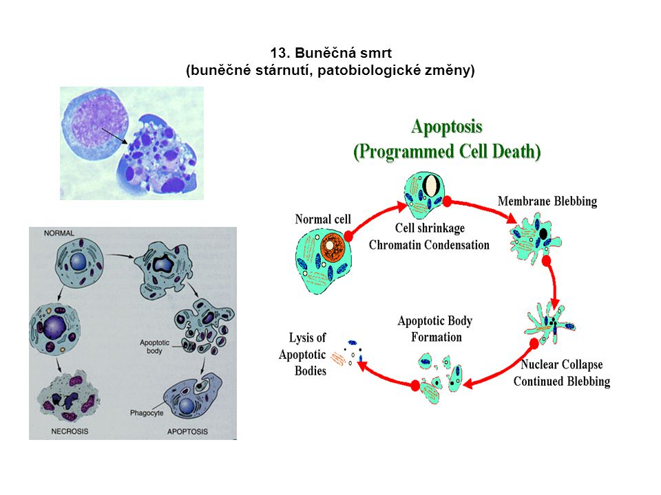 13. Buněčná smrt (buněčné stárnutí, patobiologické změny)