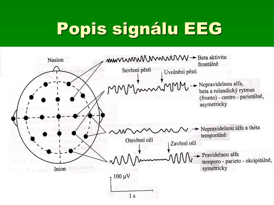 Popis signálu EEG