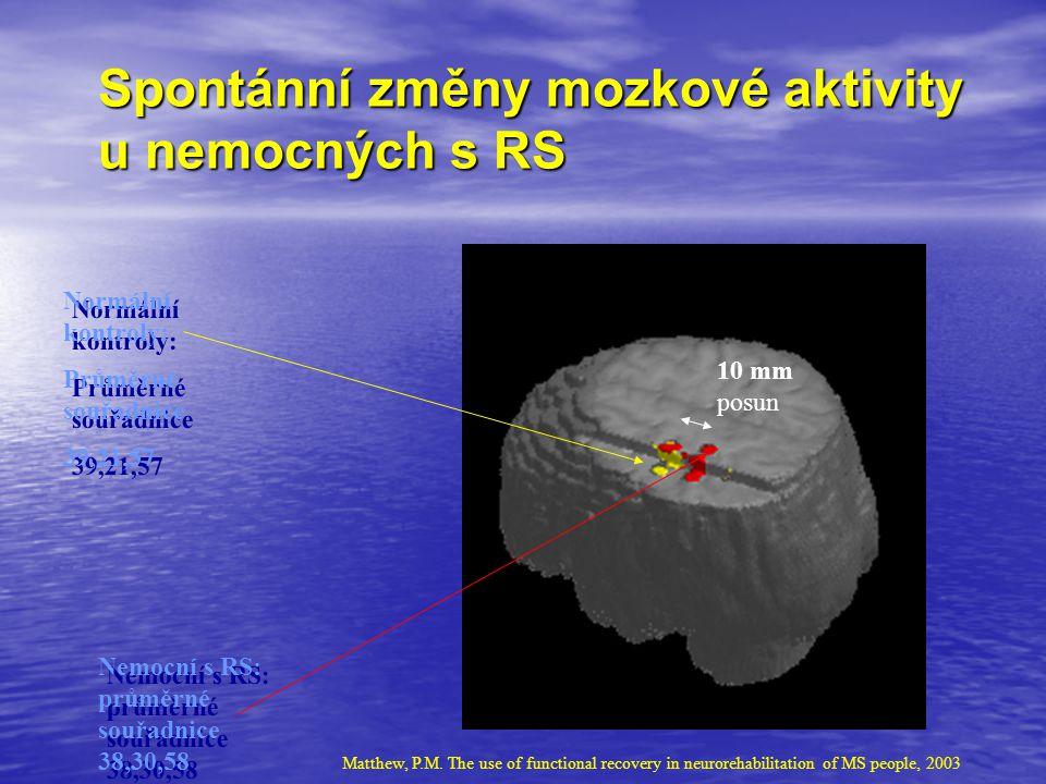 Spontánní změny mozkové aktivity u nemocných s RS