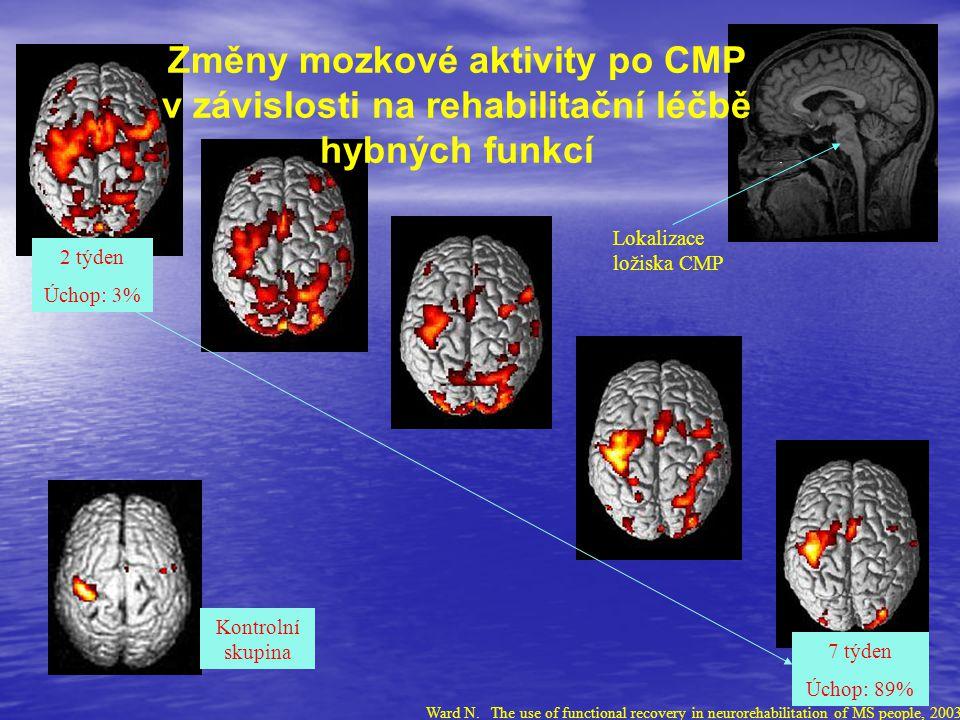 Změny mozkové aktivity po CMP v závislosti na rehabilitační léčbě hybných funkcí