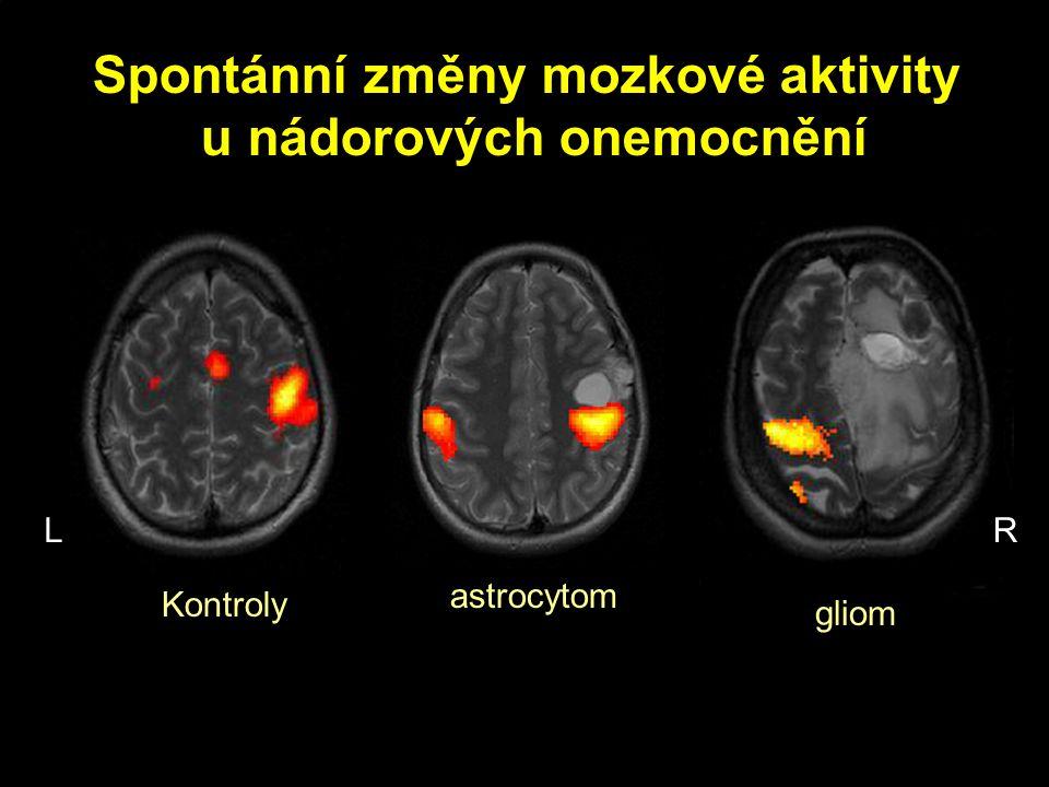 Spontánní změny mozkové aktivity u nádorových onemocnění