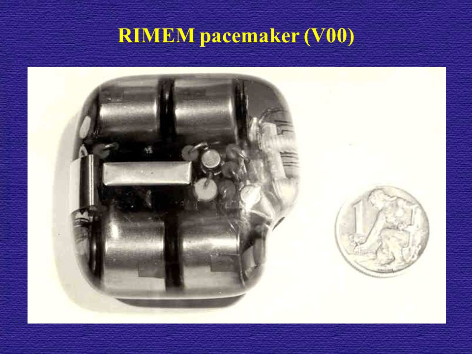 RIMEM pacemaker (V00)