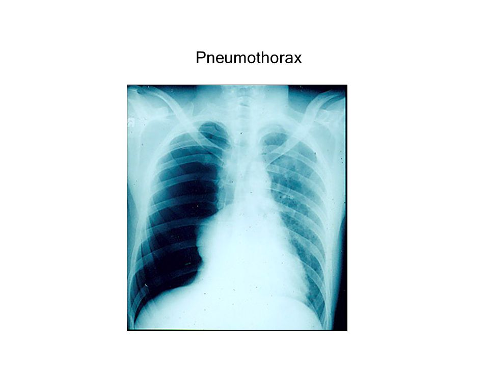 07-Mechanics.ppt Pneumothorax revised 1/9/04 5