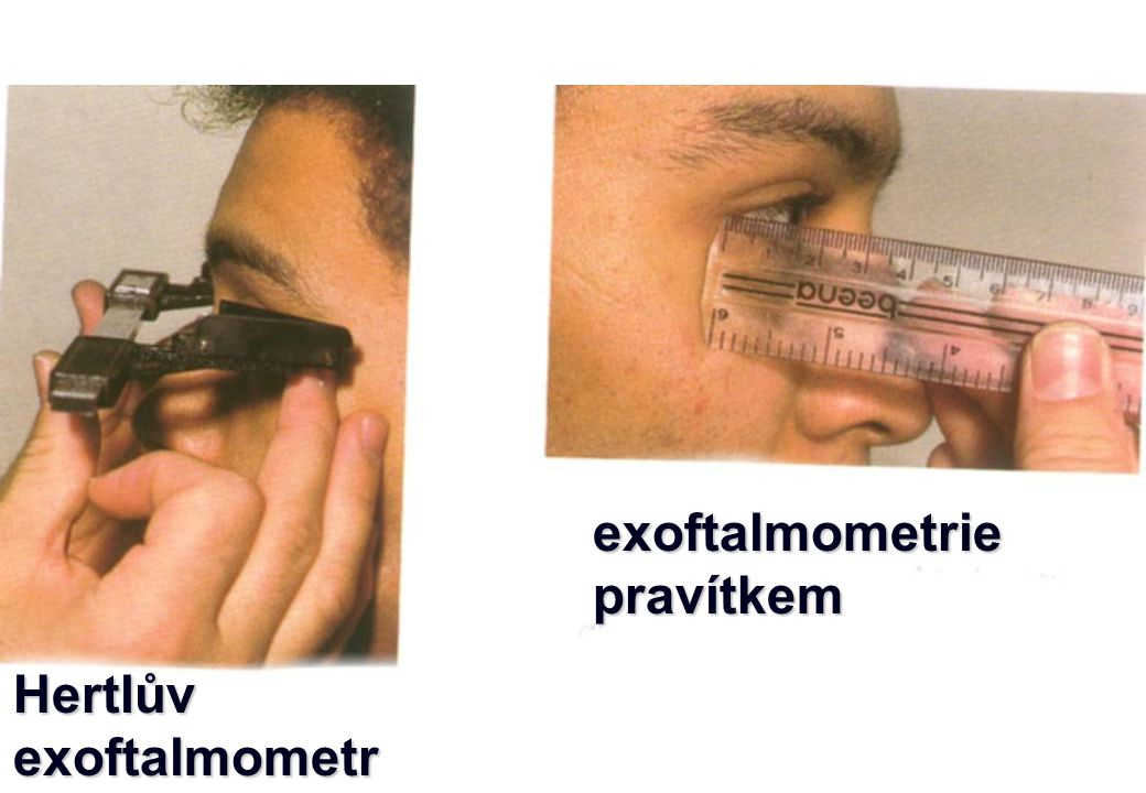 exoftalmometrie pravítkem Hertlův exoftalmometr 4