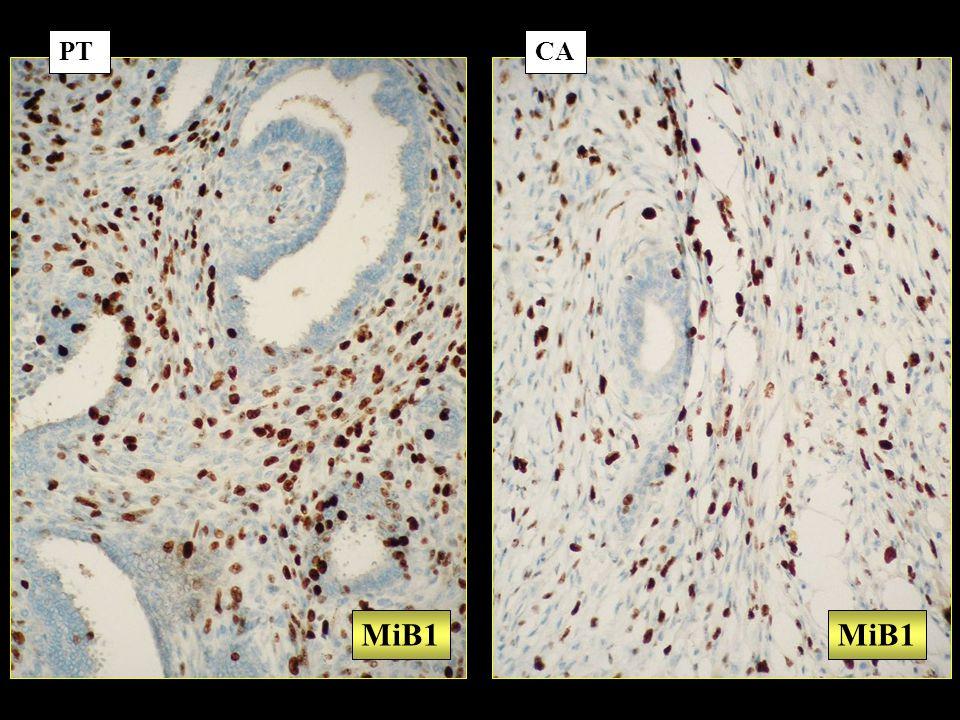 PT CA MiB1 MiB1