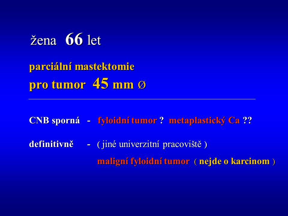 parciální mastektomie pro tumor 45 mm Ø