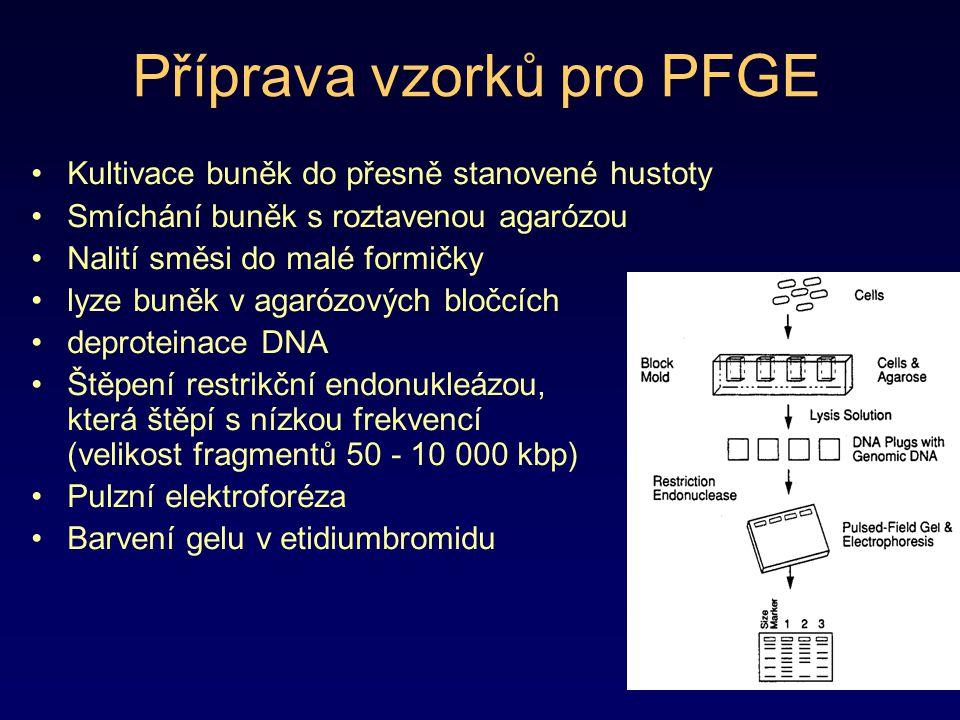 Příprava vzorků pro PFGE