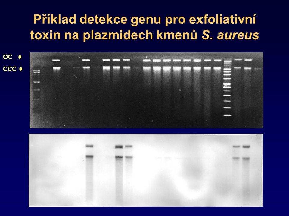 Příklad detekce genu pro exfoliativní toxin na plazmidech kmenů S
