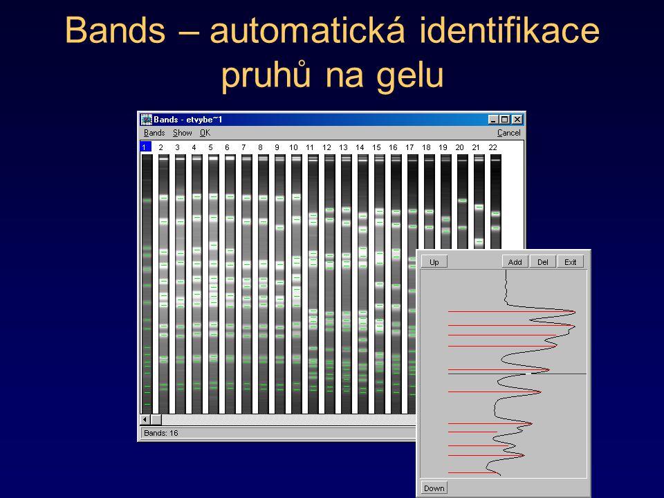 Bands – automatická identifikace pruhů na gelu