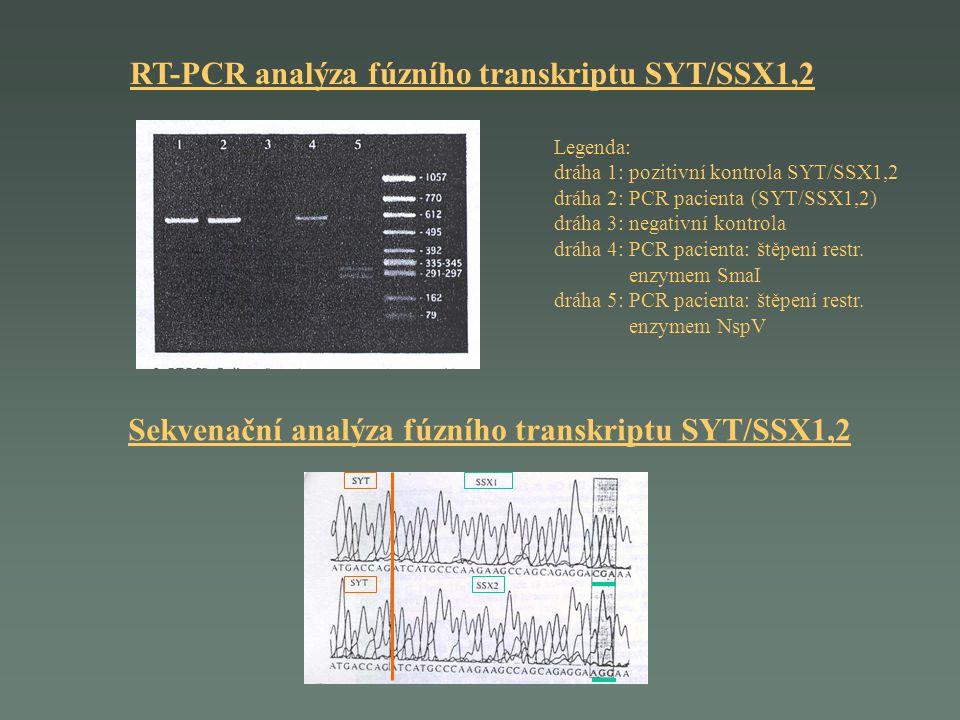 RT-PCR analýza fúzního transkriptu SYT/SSX1,2