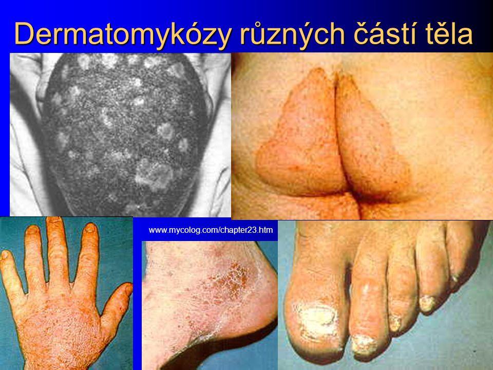 Dermatomykózy různých částí těla