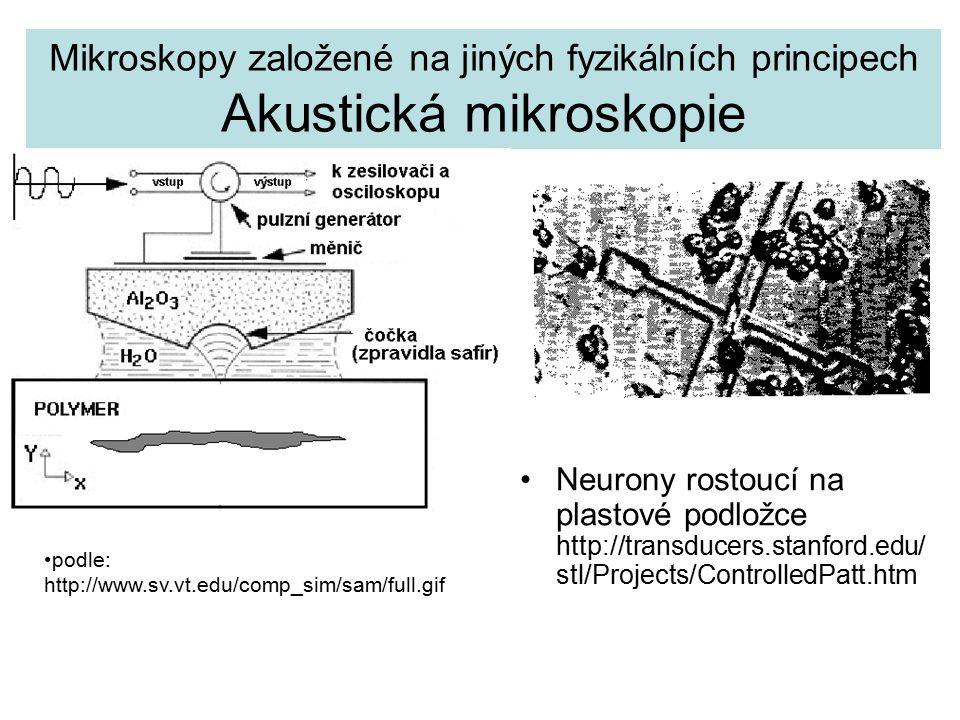 Mikroskopy založené na jiných fyzikálních principech Akustická mikroskopie