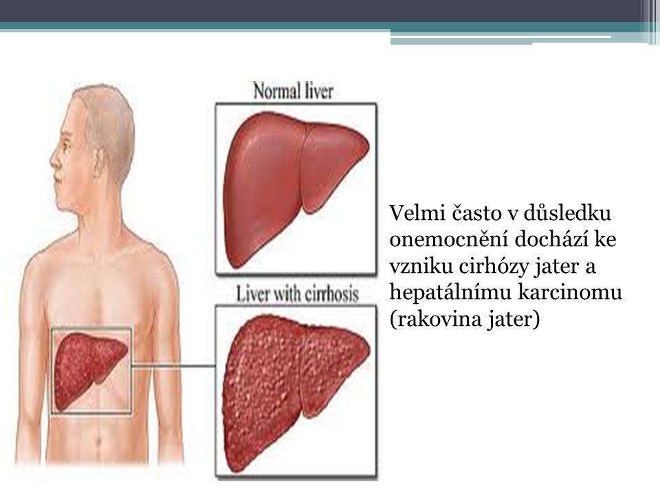 Velmi často v důsledku onemocnění dochází ke vzniku cirhózy jater a hepatálnímu karcinomu (rakovina jater)