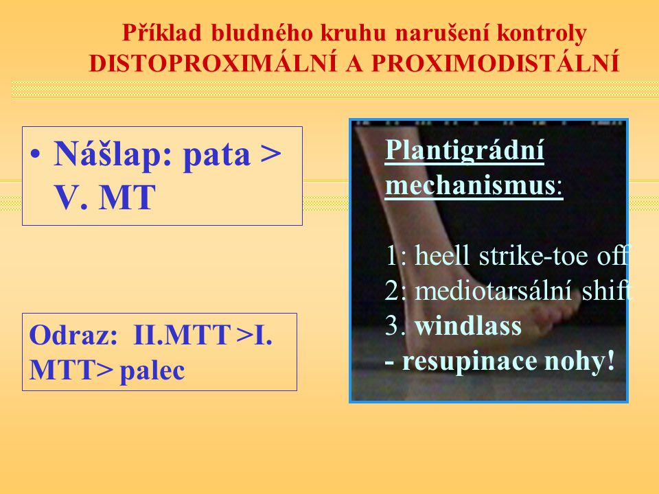 Nášlap: pata > V. MT Plantigrádní mechanismus: