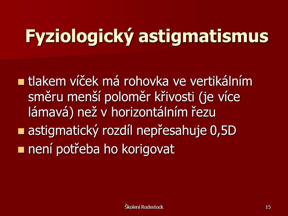 Fyziologický astigmatismus