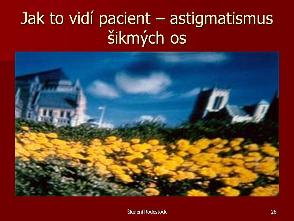 Jak to vidí pacient – astigmatismus šikmých os