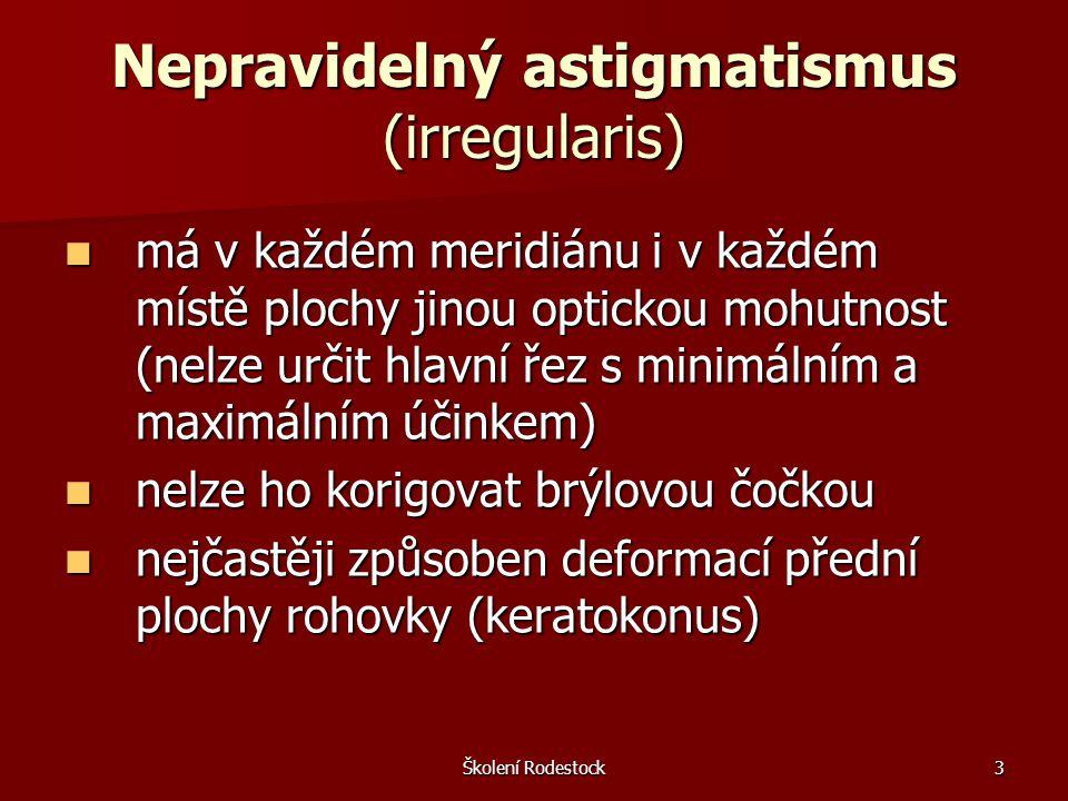 Nepravidelný astigmatismus (irregularis)
