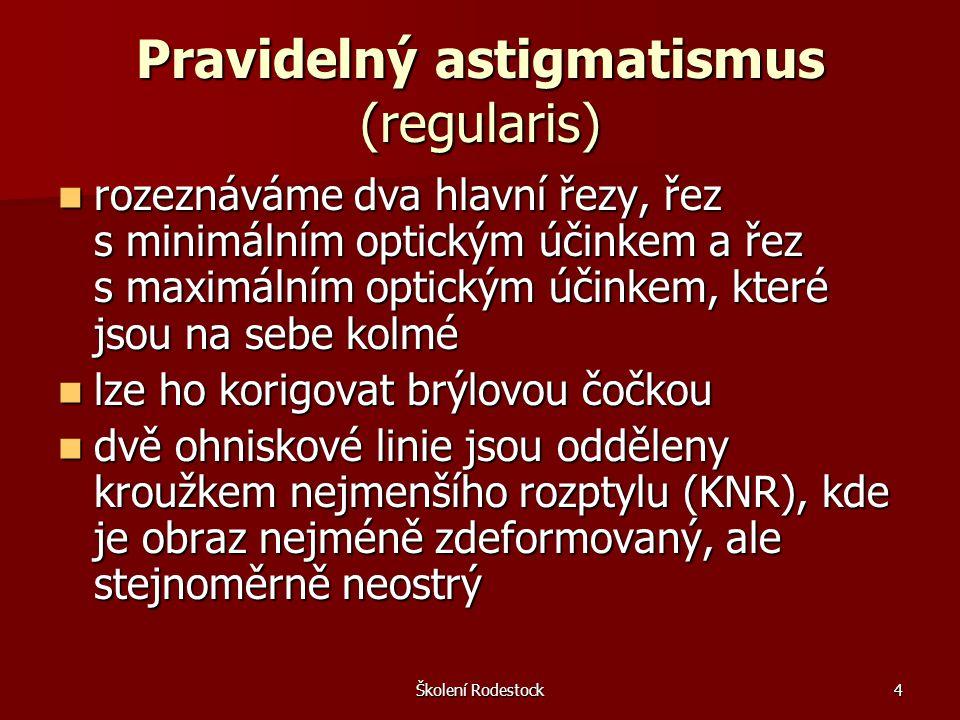 Pravidelný astigmatismus (regularis)