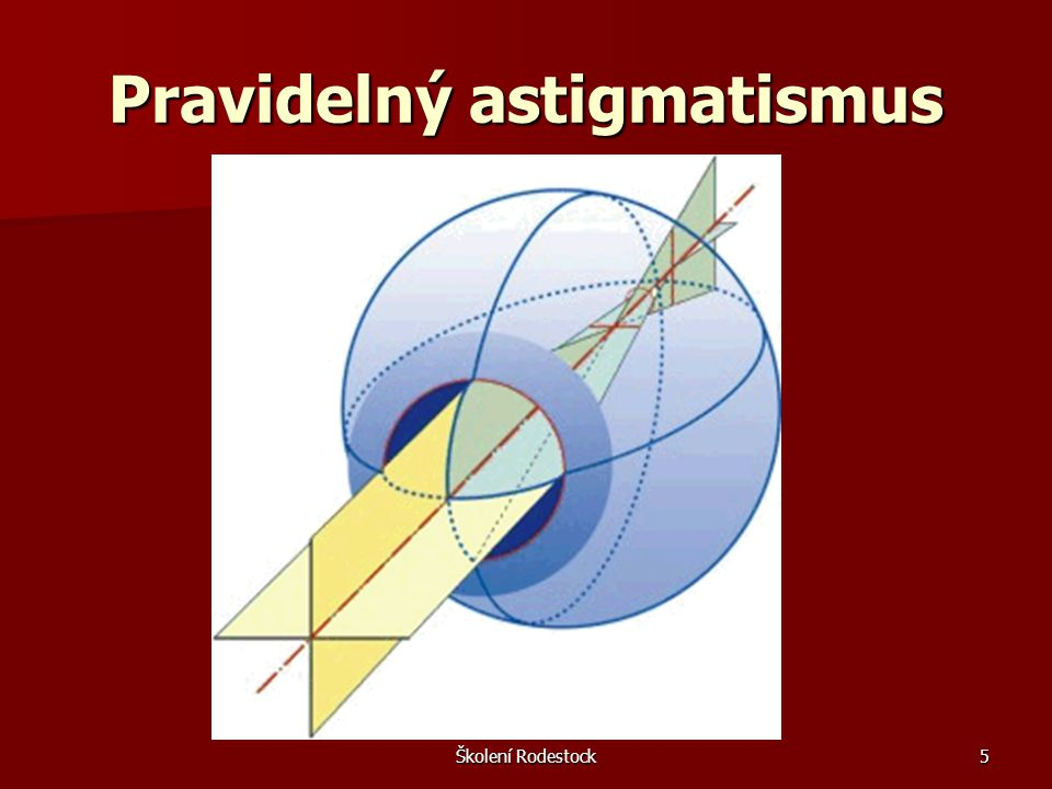 Pravidelný astigmatismus