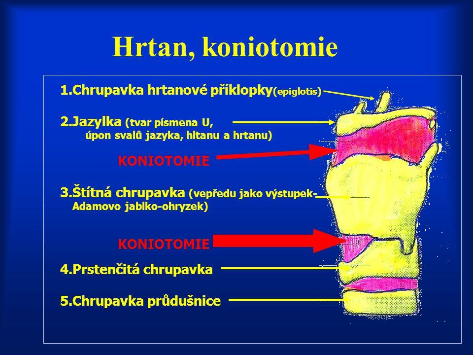 Hrtan, koniotomie 1.Chrupavka hrtanové příklopky(epiglotis)