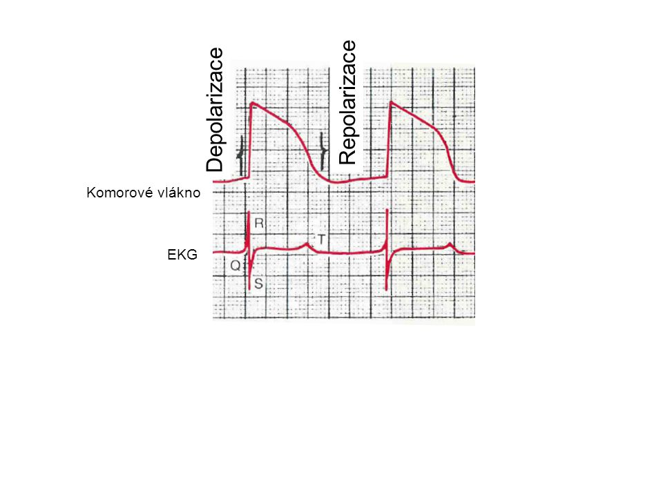 Repolarizace Depolarizace Komorové vlákno EKG