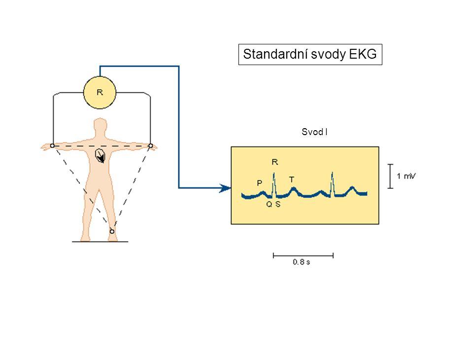 Standardní svody EKG Svod I