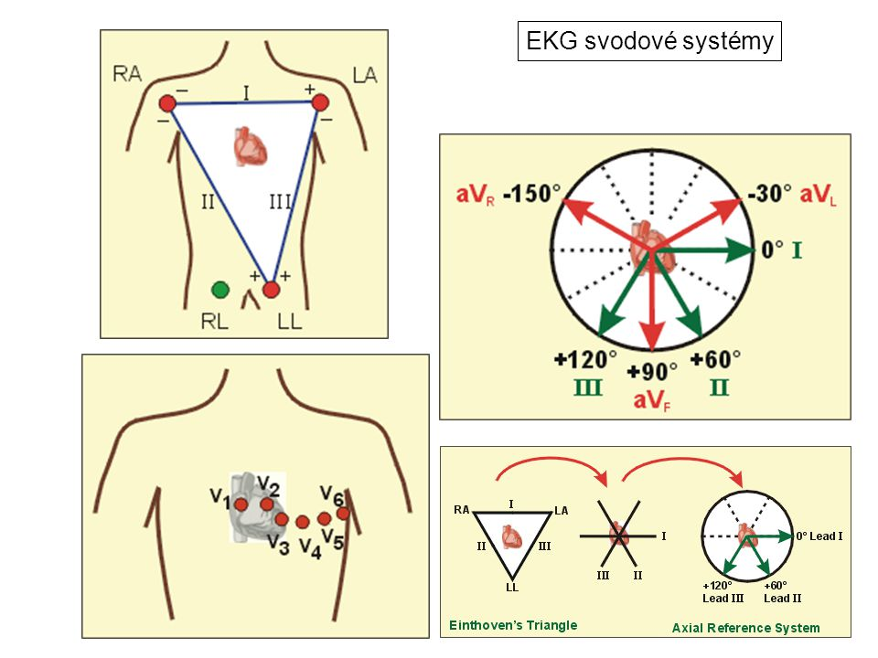 EKG svodové systémy