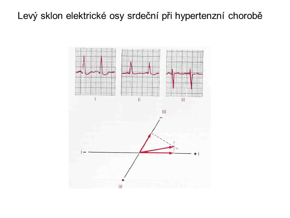 Levý sklon elektrické osy srdeční při hypertenzní chorobě