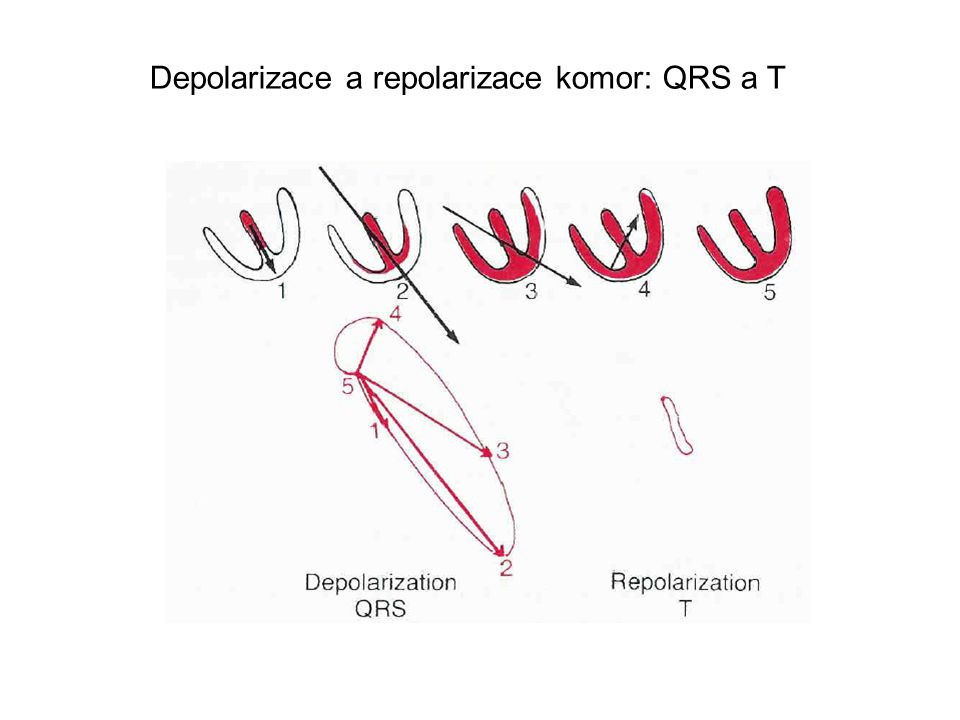 Depolarizace a repolarizace komor: QRS a T
