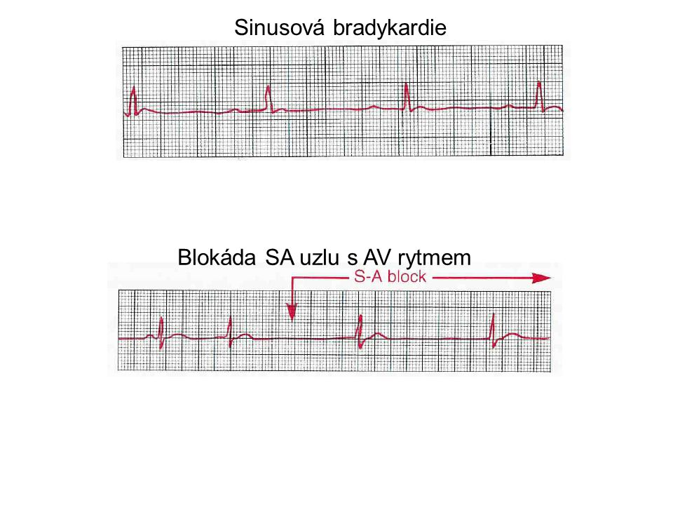 Sinusová bradykardie Blokáda SA uzlu s AV rytmem
