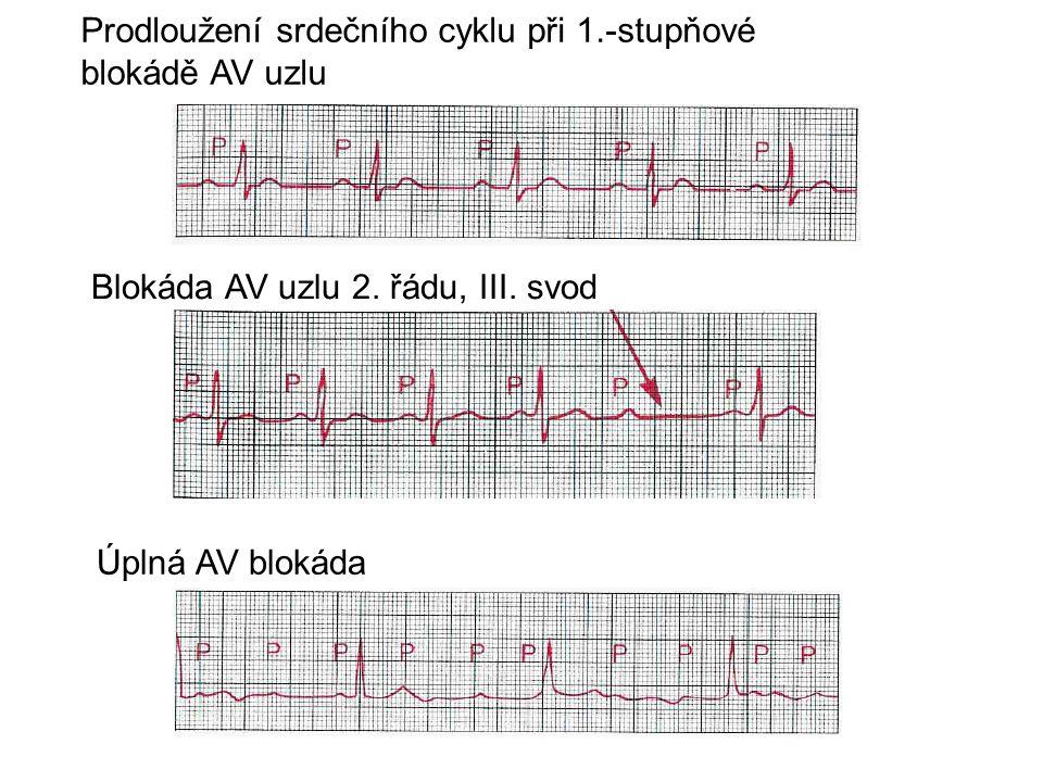 Prodloužení srdečního cyklu při 1.-stupňové