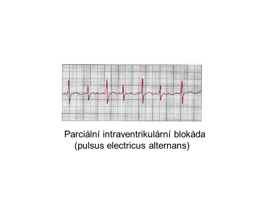 Parciální intraventrikulární blokáda