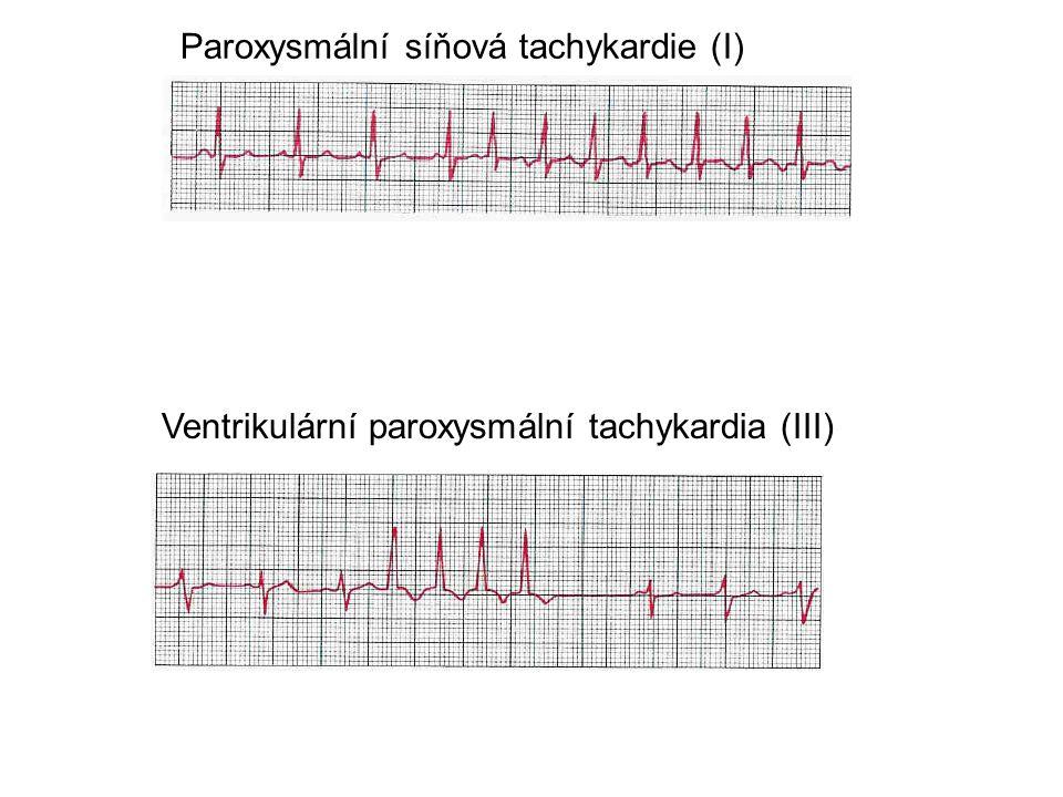 Paroxysmální síňová tachykardie (I)