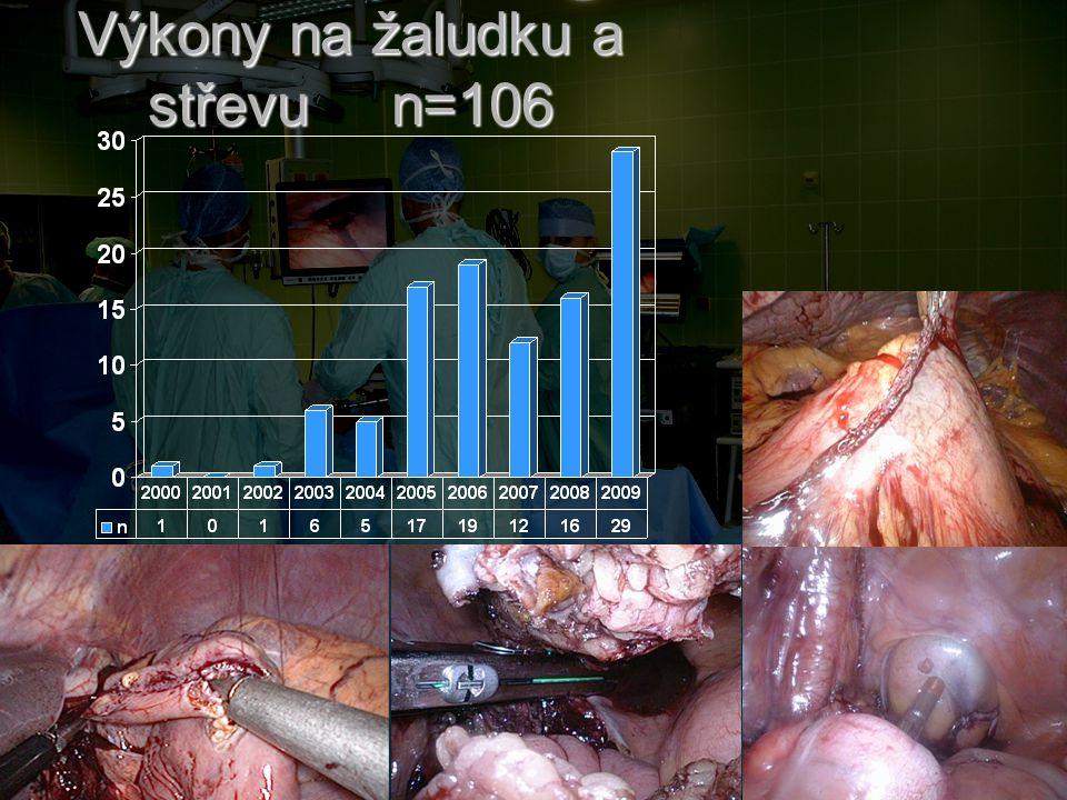 Výkony na žaludku a střevu n=106