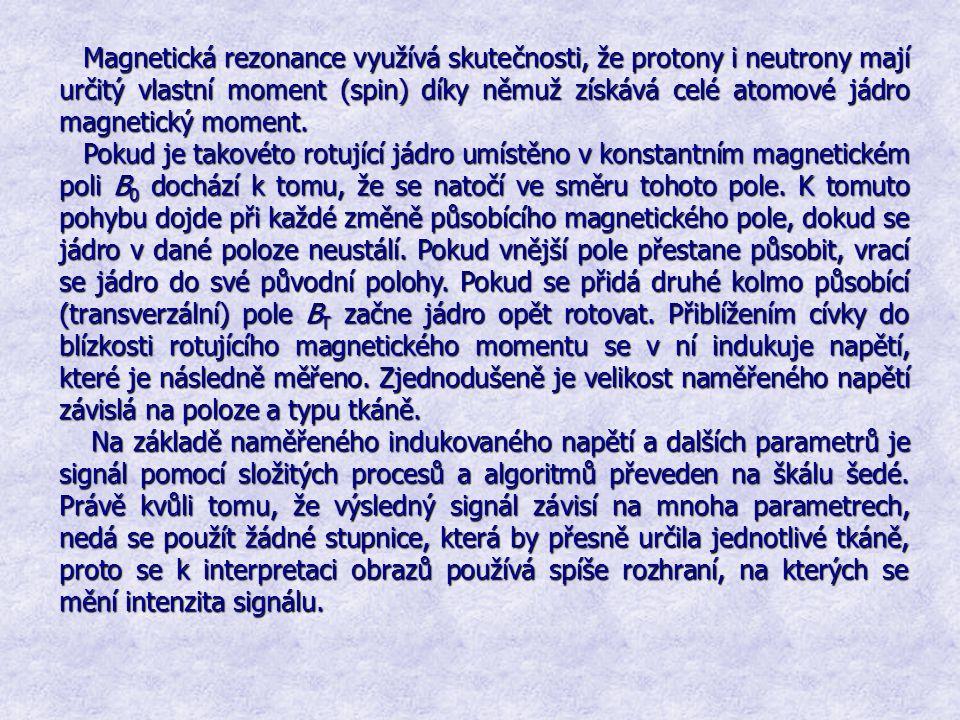 Magnetická rezonance využívá skutečnosti, že protony i neutrony mají určitý vlastní moment (spin) díky němuž získává celé atomové jádro magnetický moment.