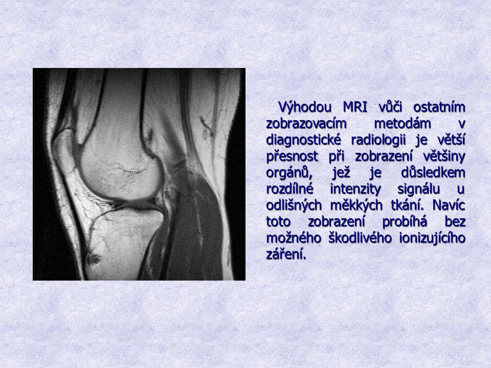 Výhodou MRI vůči ostatním zobrazovacím metodám v diagnostické radiologii je větší přesnost při zobrazení většiny orgánů, jež je důsledkem rozdílné intenzity signálu u odlišných měkkých tkání.