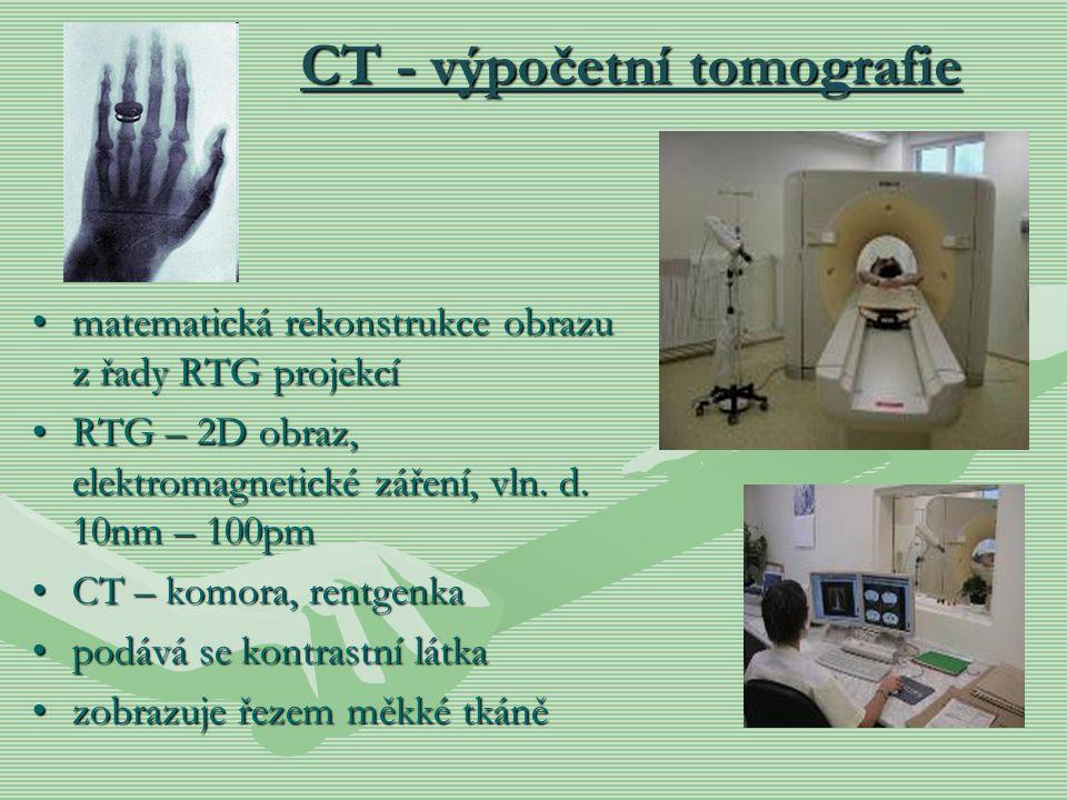 CT - výpočetní tomografie