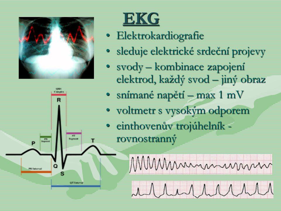 EKG Elektrokardiografie sleduje elektrické srdeční projevy