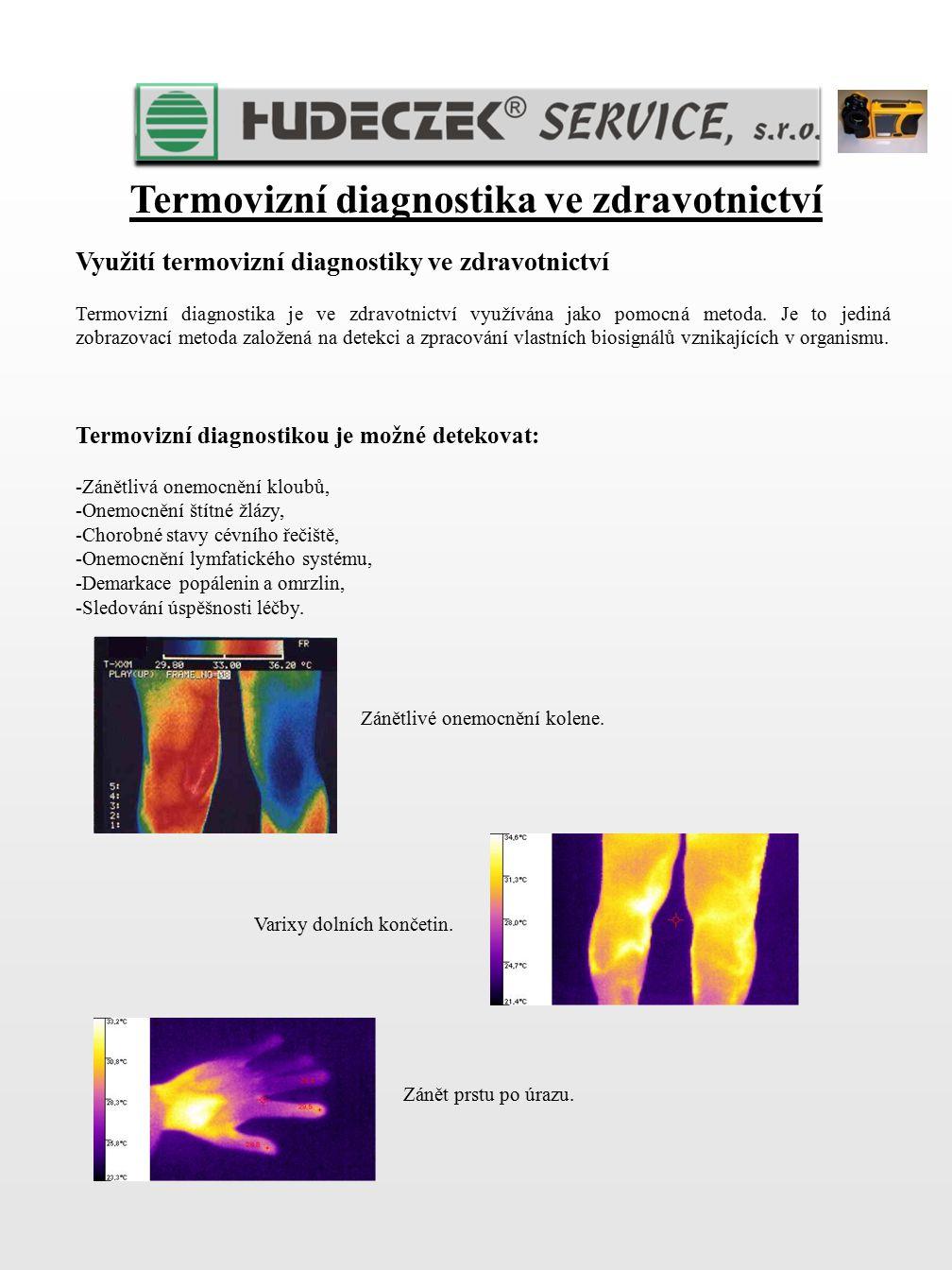 Termovizní diagnostika ve zdravotnictví